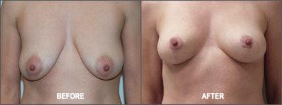 Breast lift 1