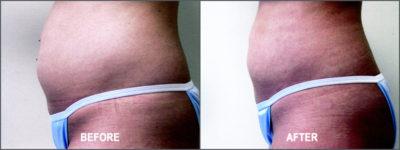 Liposuction Surgery 1