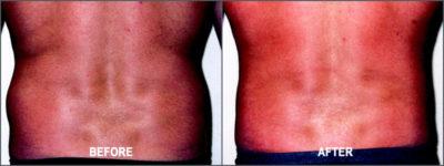 Liposuction Surgery 2