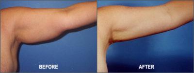 Liposuction Surgery10