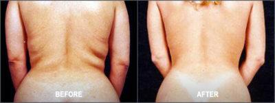 Liposuction Surgery11