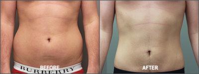 Liposuction Surgery12