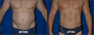Liposuction Surgery4
