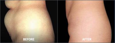 Liposuction Surgery5