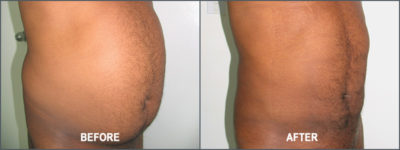 Liposuction Surgery6