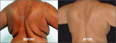 Liposuction Surgery8