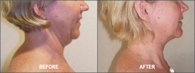 Liposuction Surgery9
