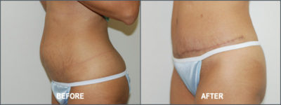 Tummy Tuck Cosmetic Surgery 4