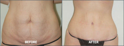 Tummy Tuck Cosmetic Surgery 5