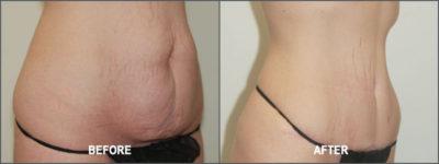 Tummy Tuck Cosmetic Surgery 6