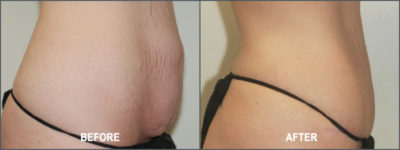 Tummy Tuck Cosmetic Surgery 7