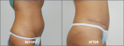 Tummy Tuck Cosmetic Surgery3