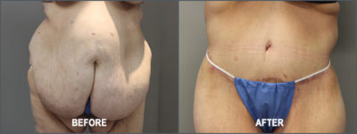 belt lipectomy 10