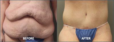 belt lipectomy 12