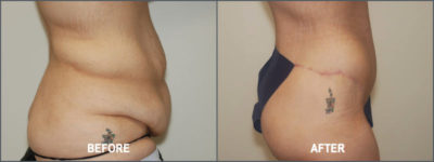 belt lipectomy 2