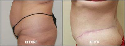 belt lipectomy 4