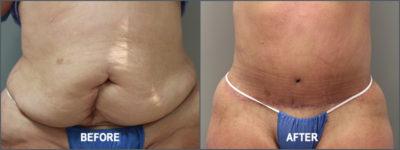 belt lipectomy 9