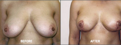 breast reduction-1