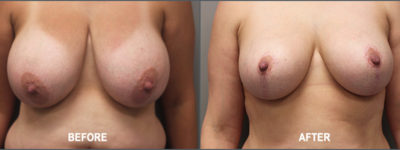 breast reduction- 2