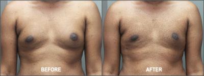 gynecomastia 6