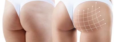 buttocks-lift